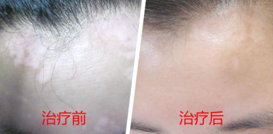 武汉白癜风的主要病因是什么
