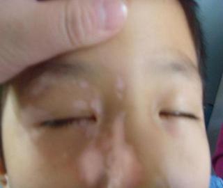 武汉有没有治疗白斑的医院?白癜风的早期症状